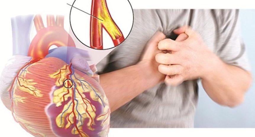 Hút thuốc và bệnh tim mạch!
